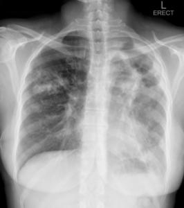 Aan die regterkant vroeë volwasse tipe tuberkulose infiltrate in die long en aan die linkerkant 'n long met groot holtes (cavities) waar die meeste TB bakterieë groei