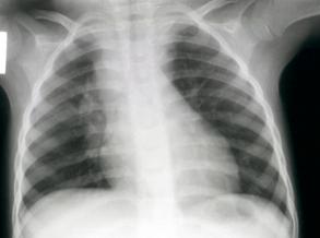 Hoe lyk TB in kinders?