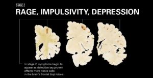 Stadium 2: Woede, impulsiwiteit en depressie. Simptome begin te verskyn soos wat Tau proteine in die frontale lobbe neergelê word.