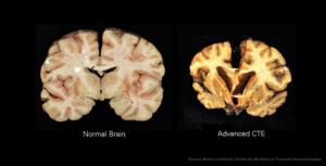 Stadium 4: die verskil tussen 'n normale brein en CTE-brein is dramaties