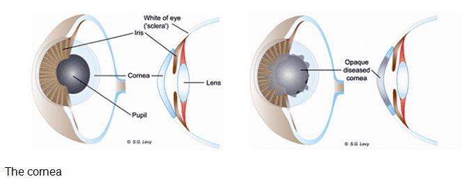 Mooi oë: sonder vliesie; kornea-oorplantings