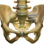 pevis_implants
