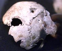 Fragmento del cráneo que los rusos atribuían a Hitler.