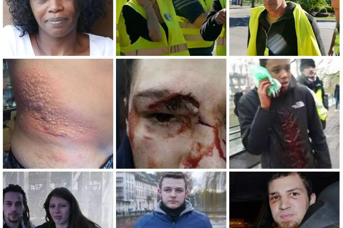 Six mois après les blessures: «Les violences policières ont ruiné ma vie»