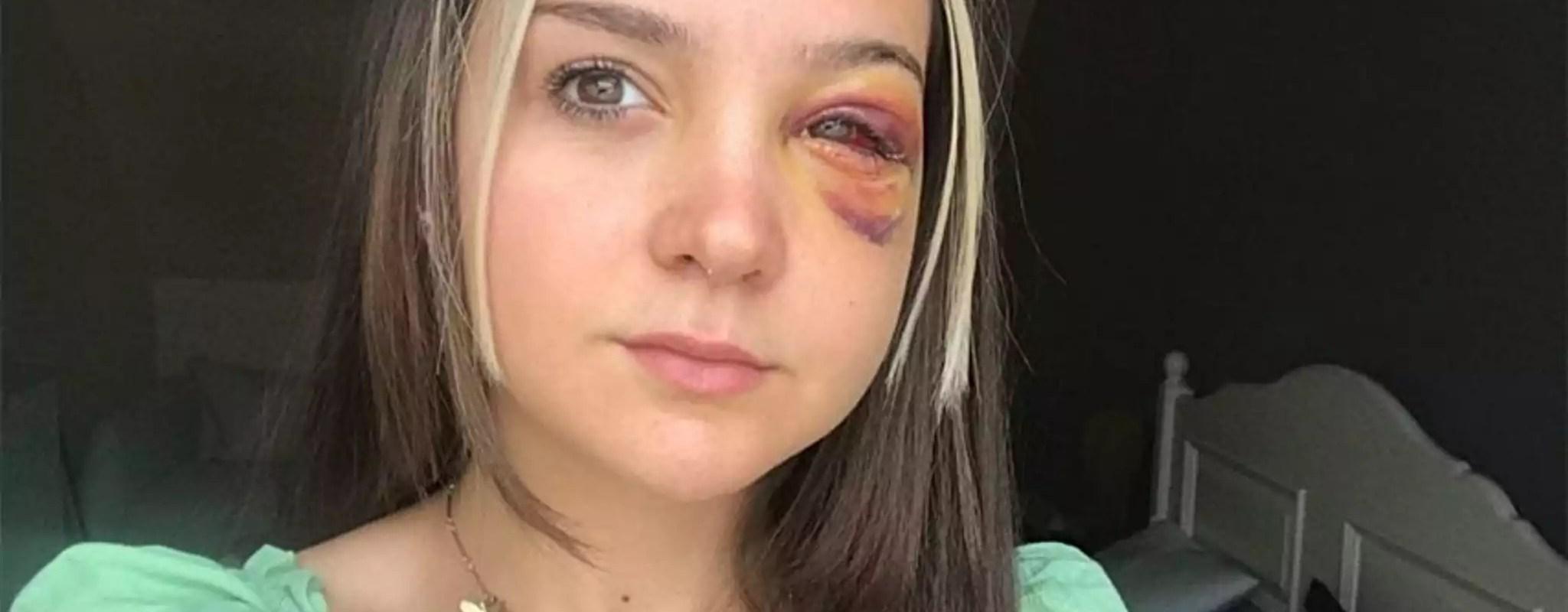 Fin de cavale pour le jeune homme suspecté d'avoir frappé deux filles au plan d'eau du Baggersee