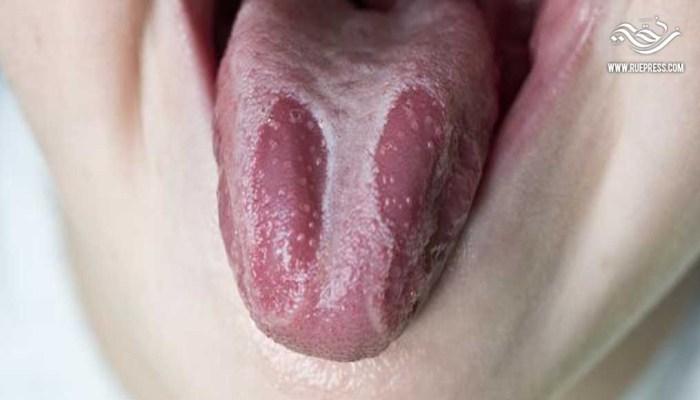 تعرف على كيفية علاج فطريات اللسان و القضاء عليها نهائيا