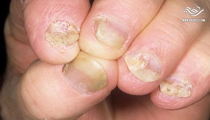 وصفات الطب البديل لعلاج فطريات الجلد