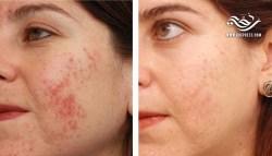 علاج ناجح % 100 لإزالة الحبوب و البثور من الوجه بشكل دائم