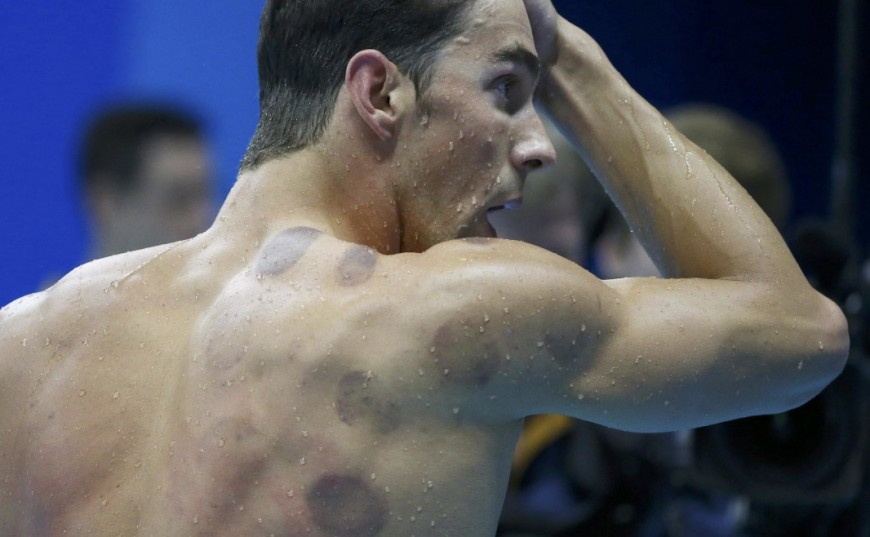 phelps-cupping-1170x658