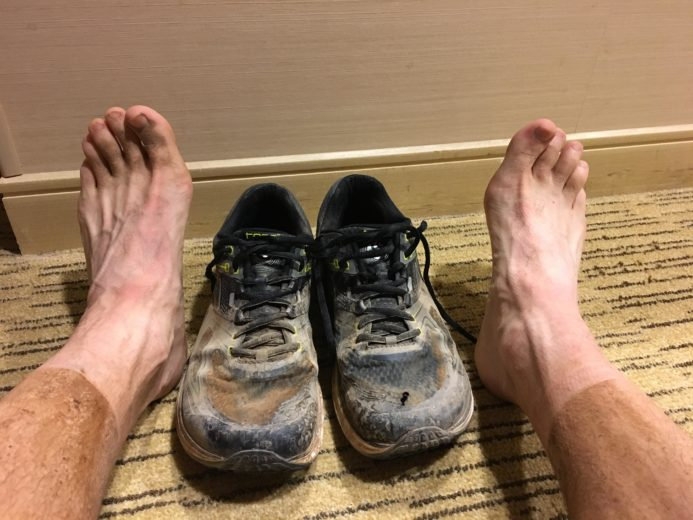 Post-Race Feet