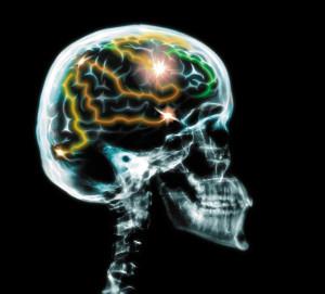 Hersenen+en+hoofd