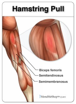 hamstring-pull-biceps-femoris