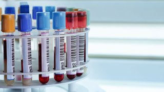 Why It's So Important For Runners to Know Their Blood Type!