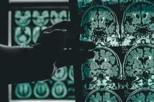 Neuroscienze rizzolatti neuroni specchio