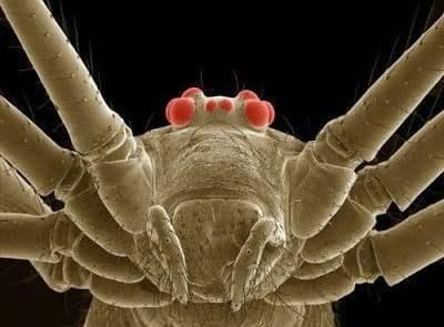تحت الميكرسكوب : شاهد عالم الحشرات كما لم تراه من قبل ! 14