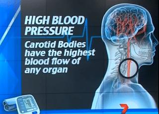 علاج جراحي يقضي علي مرض ارتفاع ضغط الدم نهائياً !