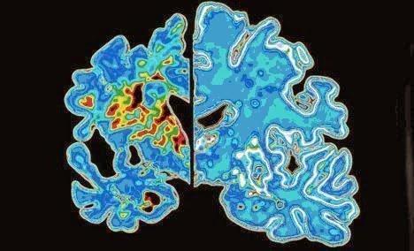 تأثير مرض الزهايمر علي خلايا المخ