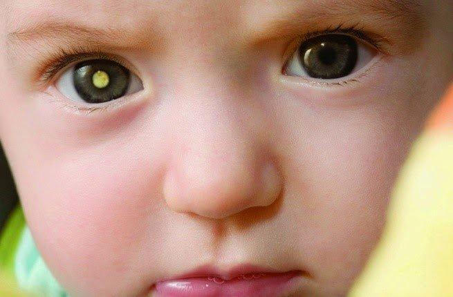 صور الهاتف الجوال تنقذ الأطفال من سرطان شبكية العين !