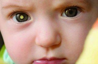 صور الهاتف الجوال تنقذ الأطفال من سرطان شبكية العين ! 1
