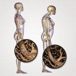 أسباب النحافة و علاجها : مشكلة نقص الوزن و طرق علاجها 7