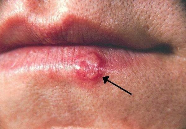 فيروس الهربس البسيط : قرحة صغيرة قد تعني الخطر على حياة طفلك !