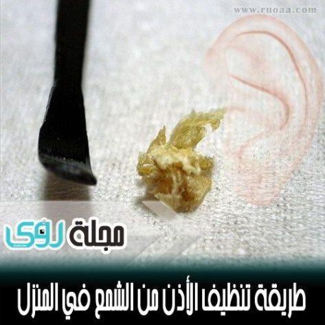 وصفة منزلية لتنظيف الأذن من الشمع في 60 ثانية مجلة رؤى