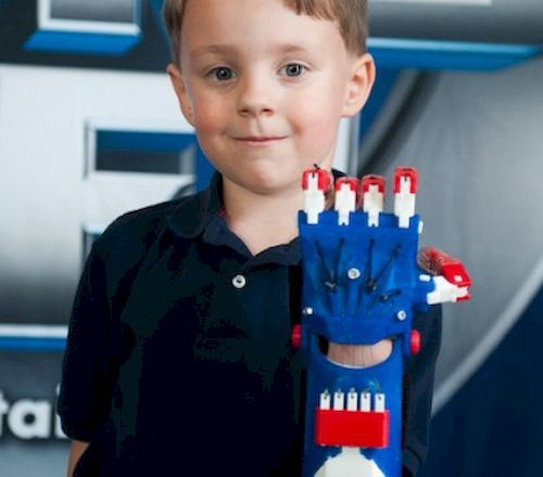 أطراف صناعية مجانية للأطفال بإستخدام تقنية الطباعة ثلاثية الأبعاد 3