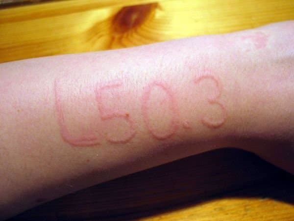 ديرما توغرافيا : مرض الكتابة على الجلد أو كتوبية الجلد - أسبابه وعلاجه 3