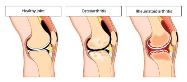 Animation to Compare Normal, osteoarthritic and rheumatoid arthritis joints