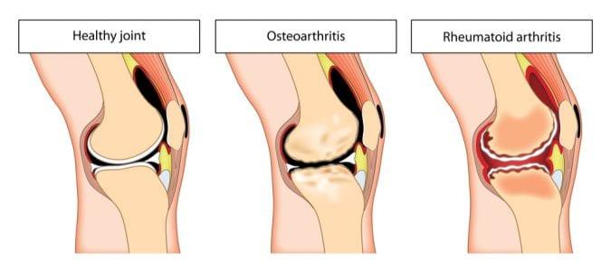 Animation to Compare Normal, osteoarthritic and rheumatoid arthritis joints