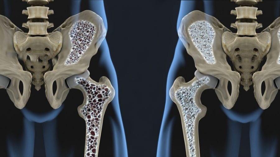 menopause can bring osteoporosis xray of brittle bones