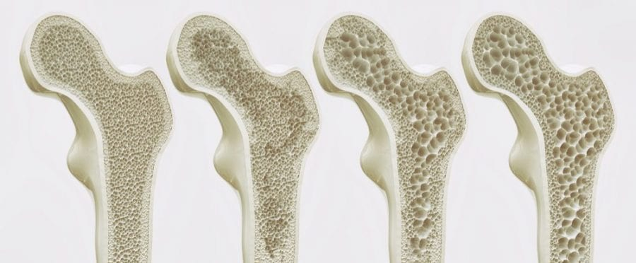 osteoporosis, cannabis, skeleton, medical cannabis, recreational cannabis, CBD, THC, bone health, cannabinoids, age, bones, deterioration