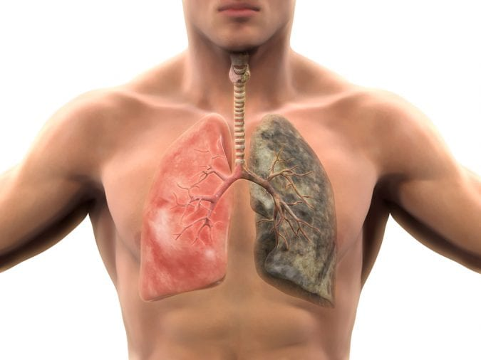 Animation showing healthy lung versus smoker's lung