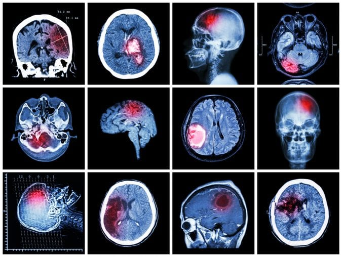 MRI scans showing red area of brain injury