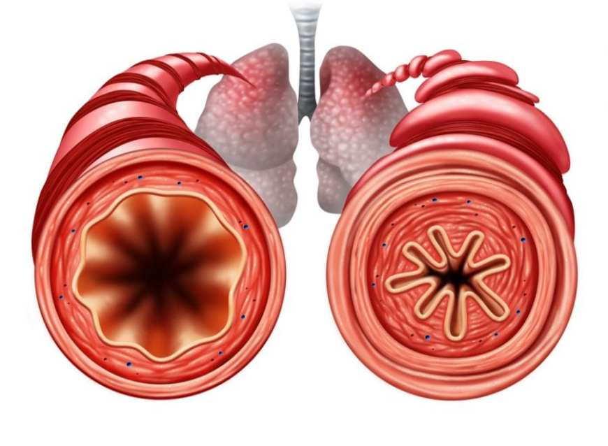 Diagram showing difference between healthy airway and asthma