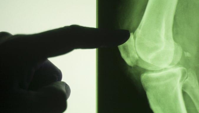 Xray of Arthritic Knee Joint