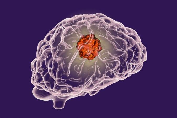 animation of brain tumor