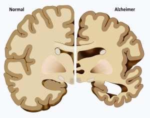 Neuroplasticity in dementia patients represented by image of Normal versus alzheimer's brain