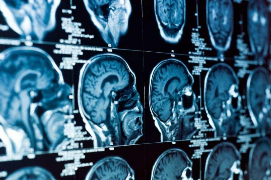 cannabis, brain scan, children, ADHD, seizures, cancer, CBD oil, cannabis oil, CBD, THC