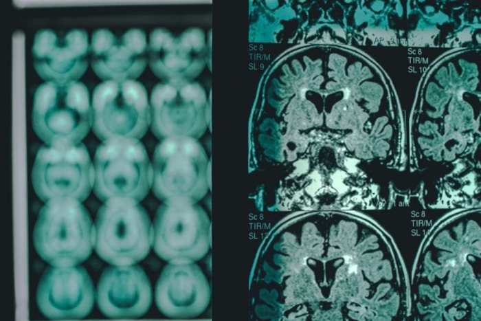 cannabis, alzheimer's disease, neurodegenerative disease, CBD, THC, brain, MRI, ALS, Huntington's