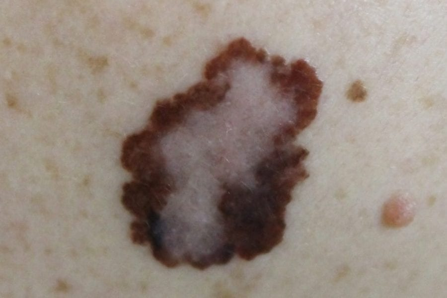 melanoma, tumours, skin cancer, cannabis, medical cannabis, cancer treatment, shrink tumours, research, mole, CBD