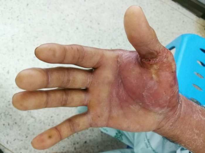 bacterial infection in human hand showing cellulitis