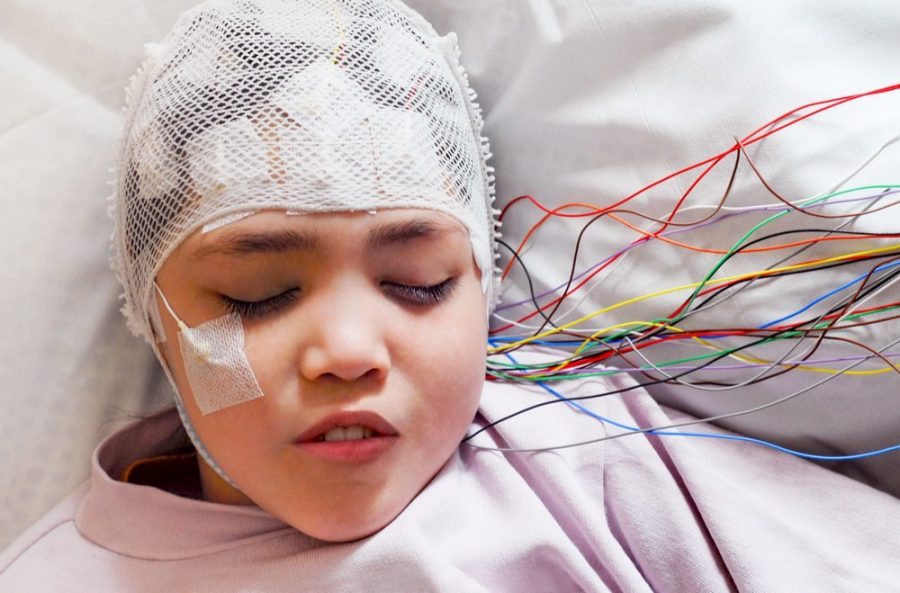 cannabis oil and seizures for this child undergoing eeg