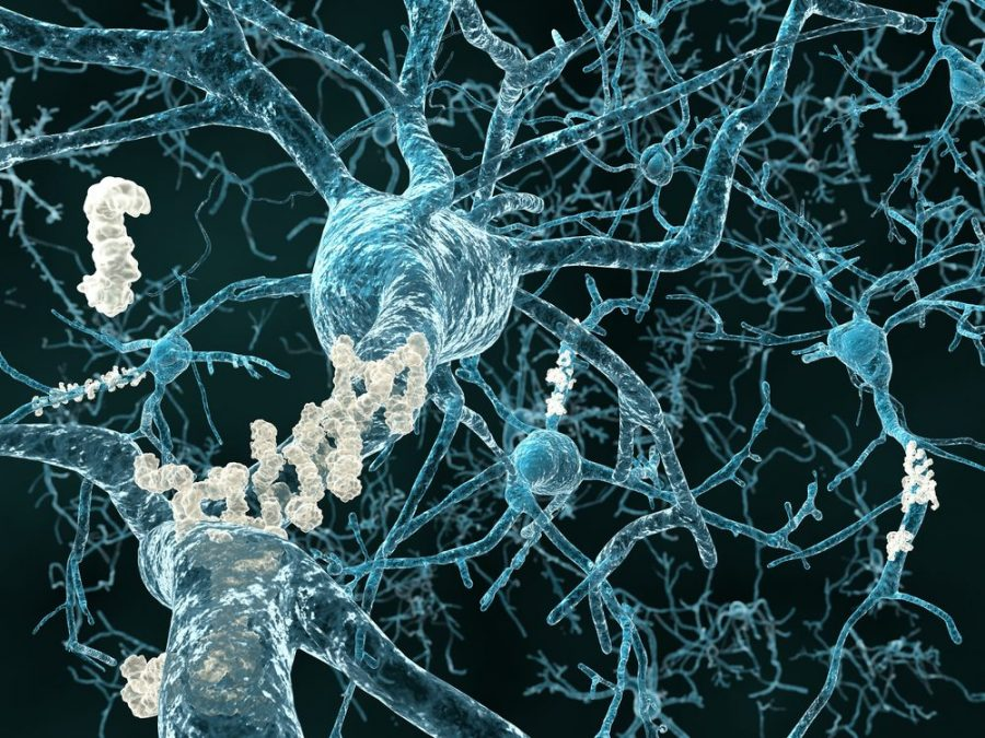 THC and dementia, amyloid plaques, A-beta, dementia, cognitive, memory, learning, remembering