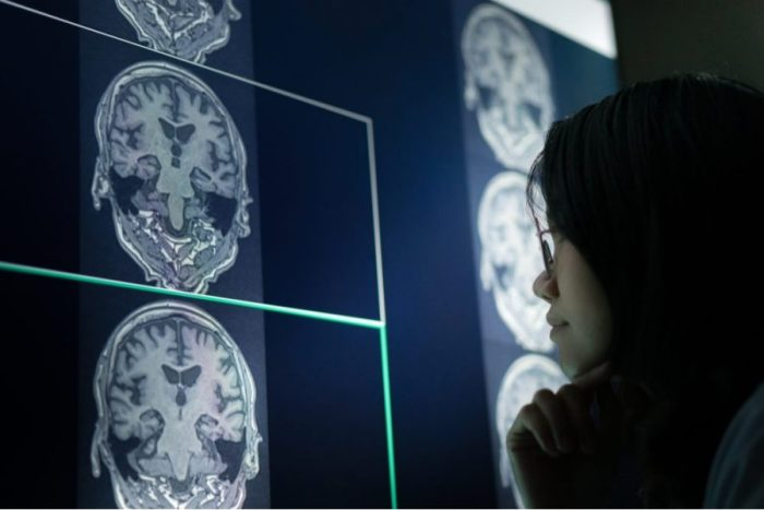 brain scan, cognitive function, research, medical cannabis, executive function, brain regions, USA, legalization, synthetic cannabinoids