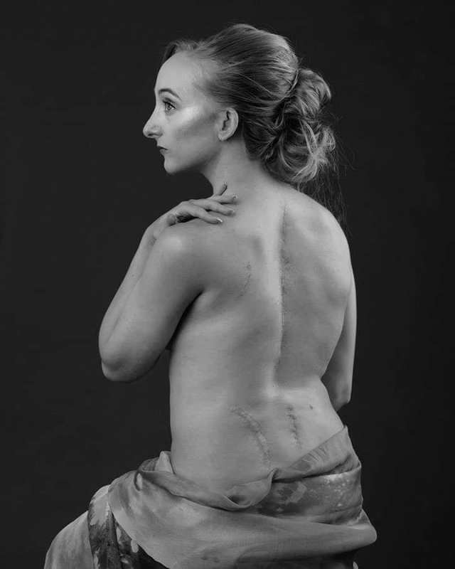 Portrait showing the cause of Chronic Back Pain
