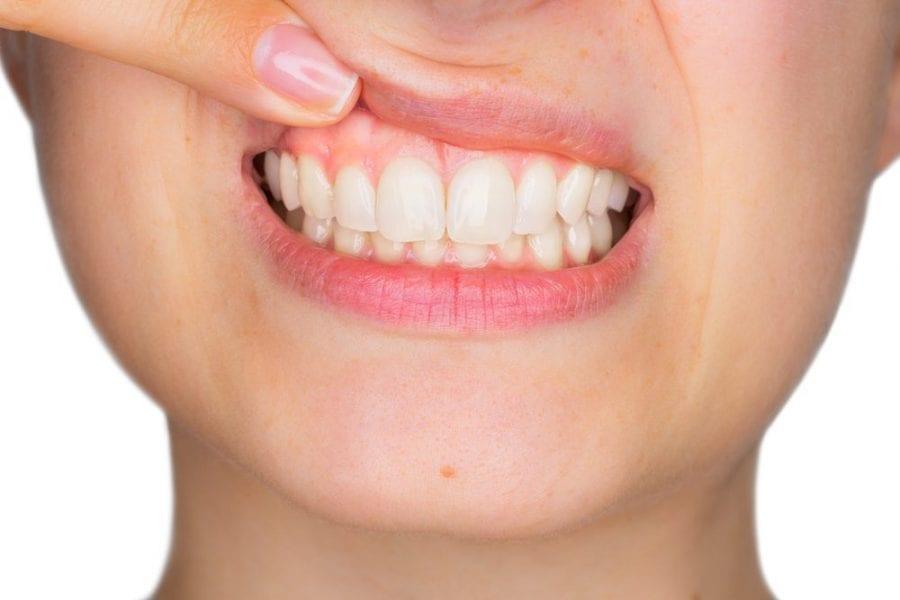 gum disease in smokers, periodontal disease, bleeding gums, tooth, dentist, smoking