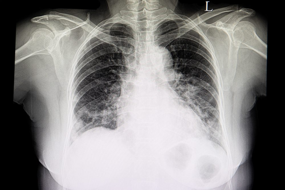 lung xray