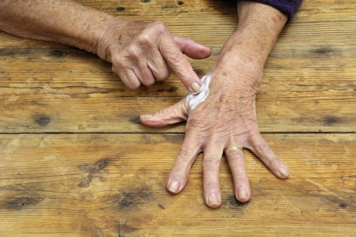 topical pain cream application onto hands