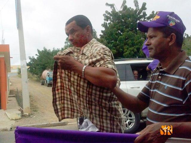 Nelson Peralta de la comunidad Clavijo se accidente en caravana del PLD